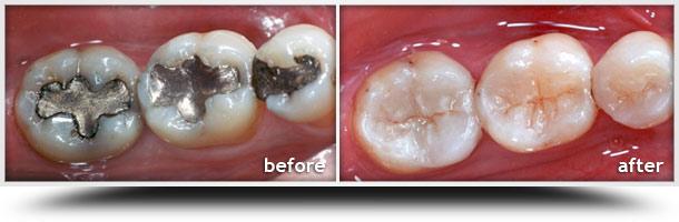 Atlanta Cosmetic Dentist Dental Inlay Inlays And Onlays