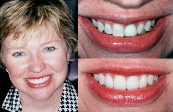 Atlanta Cosmetic Dentistry